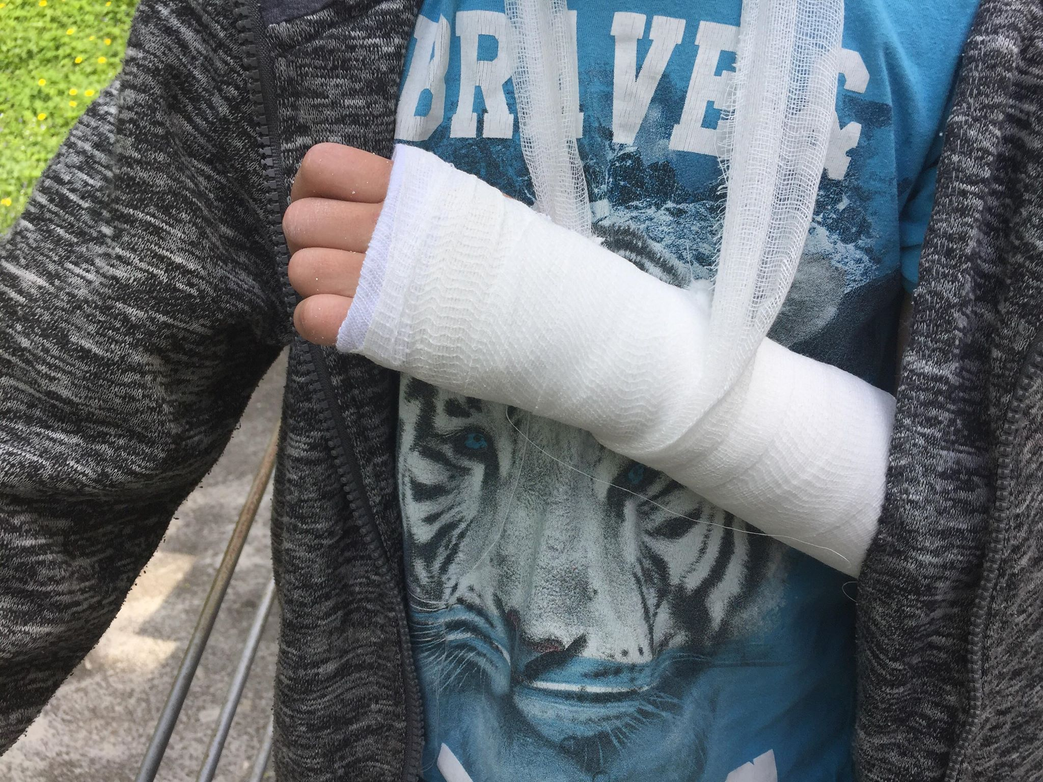 Суд звільнив від відповідальності неповнолітнього, з вини якого школяр зламав руку