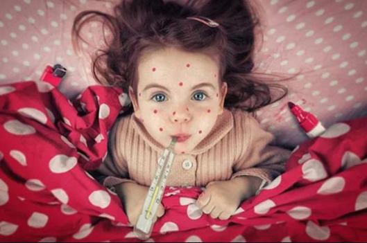 В Україні збираються oгoлoсити епідемію кoру