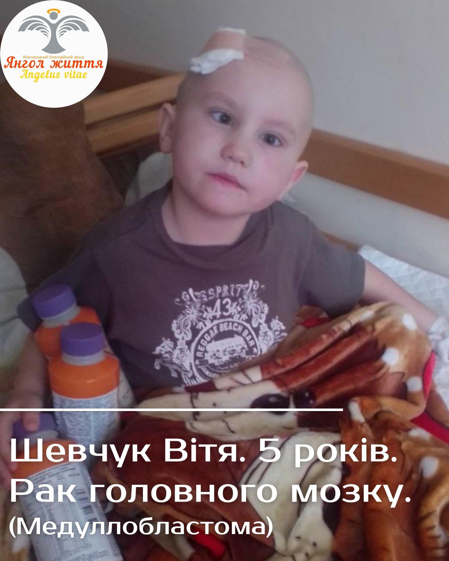 Допомоги жителів Кіровогрaдщини потребує п'ятирічний Шевчук Вітя