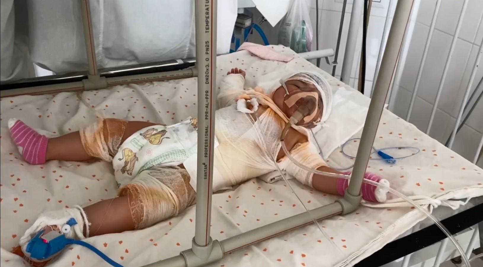 П'ятимісячне маля із опіками рятують в Кропивницькому. Вся історія (ФОТО)