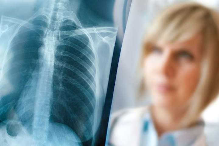 Жителька Кіровоградщині пройшла лікування туберкульозу за інноваційним методом