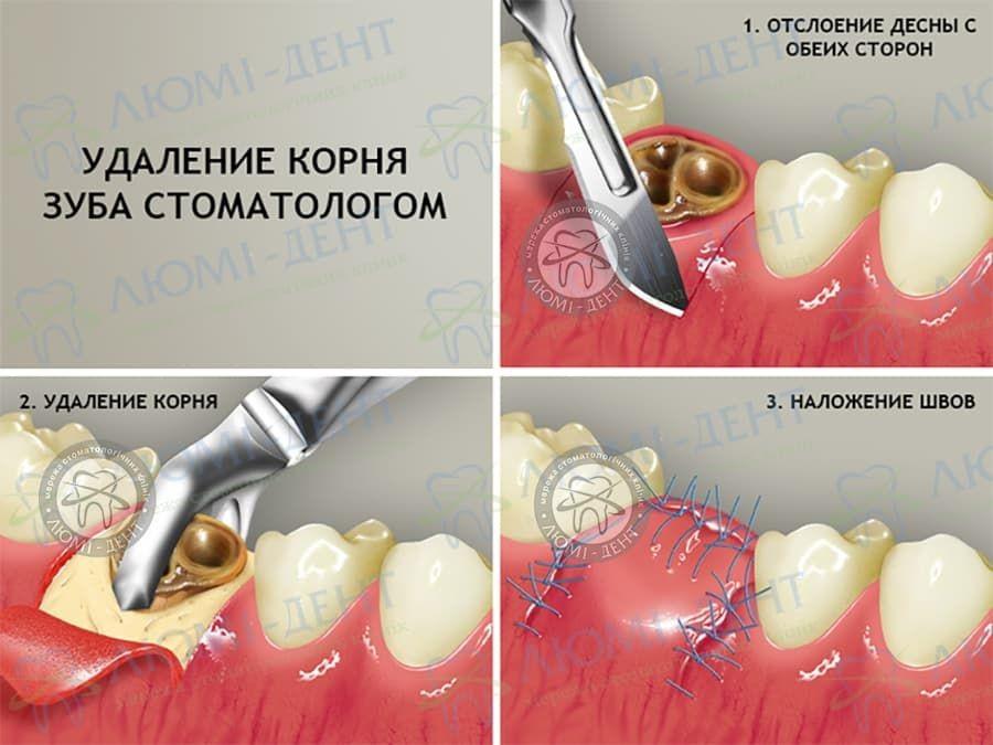 Просте та складне видалення зубів: ключові особливості